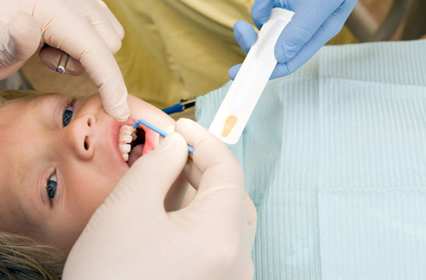 Young boy receiving fluoride treatment at Singing River Dentistry