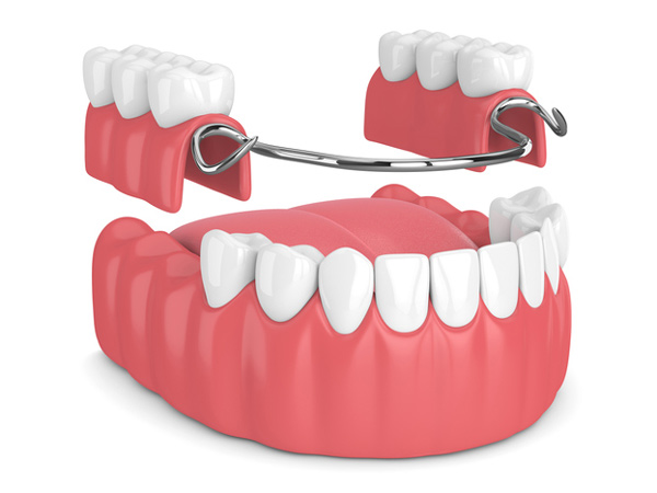 Rendering of a removable partial denture from Singing River Dentistry